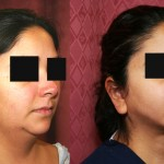 Neck & Face Liposuction Before & After Patient #6627