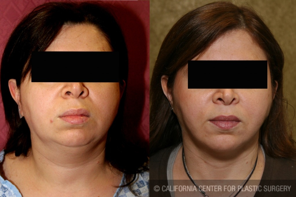 Neck & Face Liposuction Before & After Patient #6634