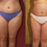 Liposuction Thighs Before & After Patient #6721