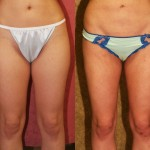 Liposuction Thighs Before & After Patient #6742