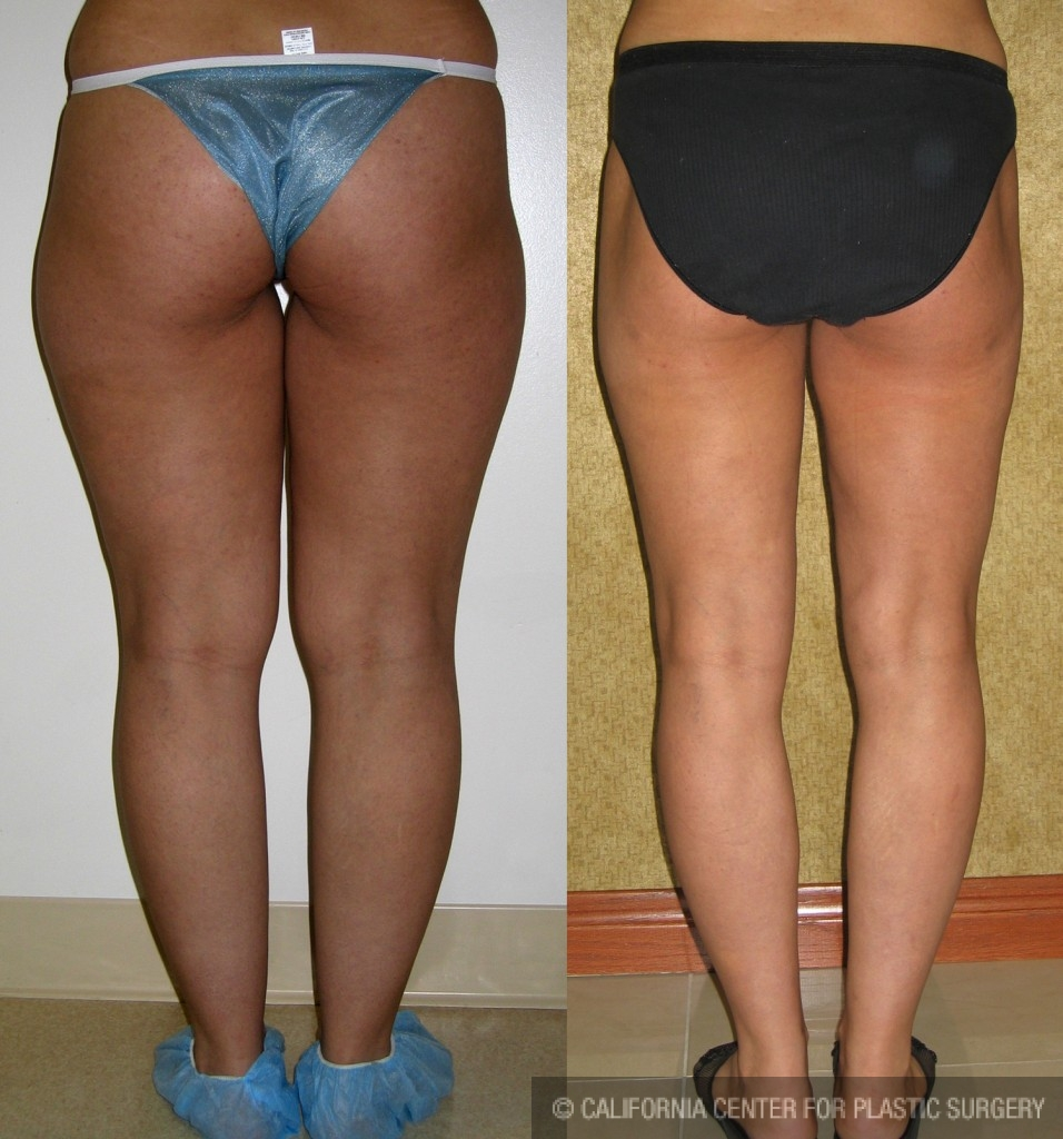 Liposuction Thighs Before & After Patient #6682