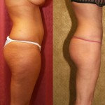 Liposuction Thighs Before & After Patient #6716