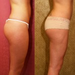 Liposuction Thighs Before & After Patient #6727