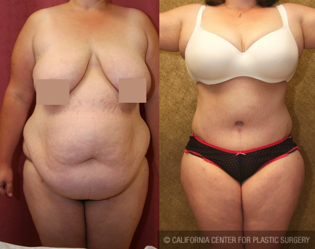Patient #5894 Tummy Tuck Plus Size Before and After Photos Los