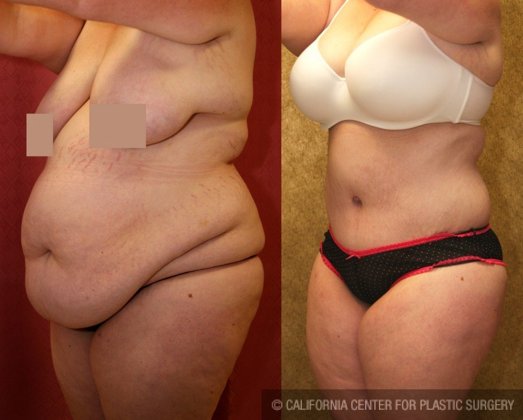 Tummy Tuck Plus Size Before & After Patient #5894