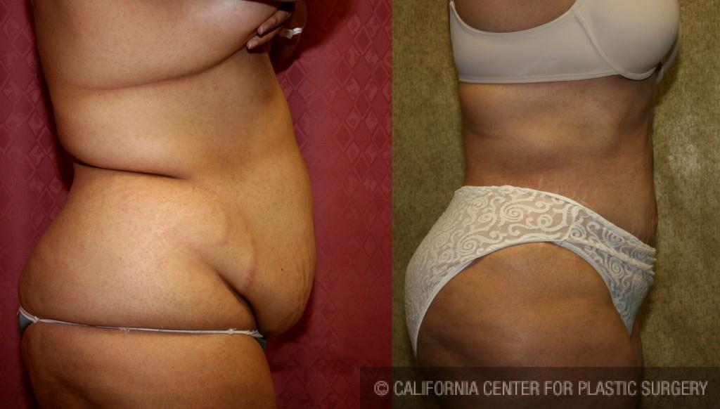 Liposuction Abdomen Plus Size Before & After Patient #5580