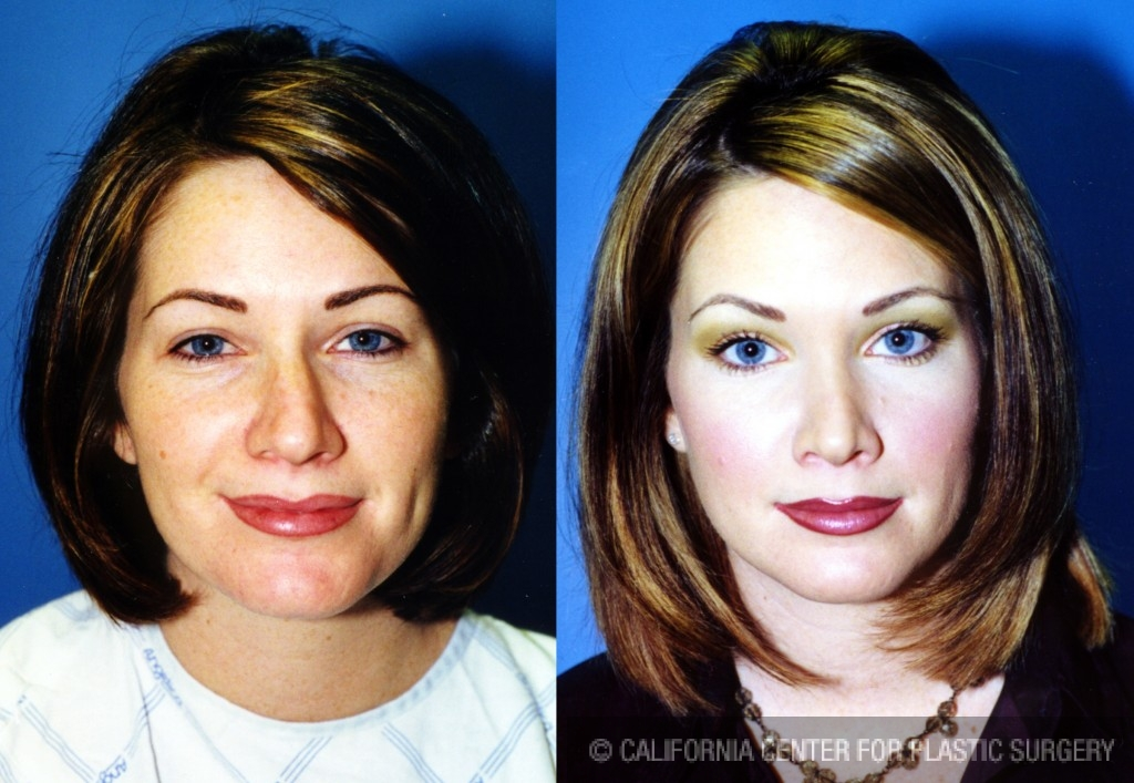 Caucasian Rhinoplasty Before & After Patient #6184