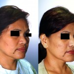 Asian Rhinoplasty Before & After Patient #6358