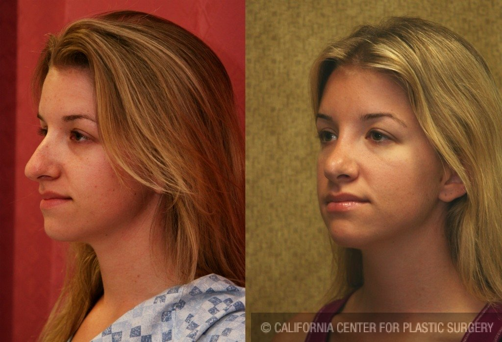 Caucasian Rhinoplasty Before & After Patient #6190