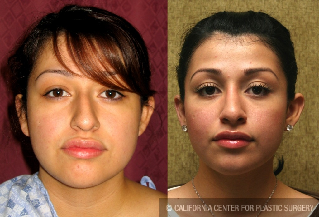 Hispanic Rhinoplasty Before & After Patient #6272