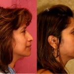 Hispanic Rhinoplasty Before & After Patient #6284