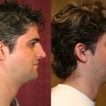 Hispanic Rhinoplasty Before & After Patient #6424