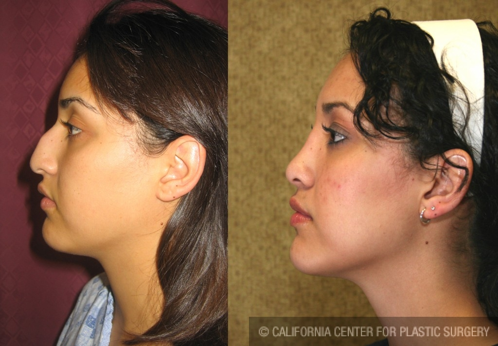 Hispanic Rhinoplasty Before & After Patient #6264