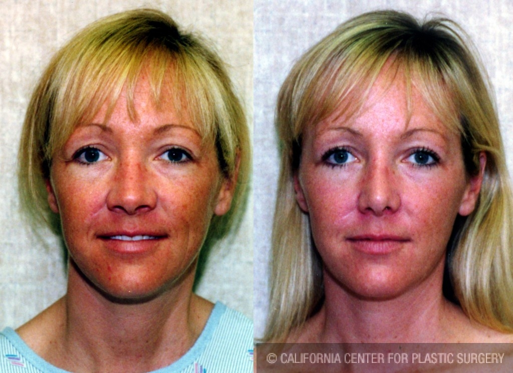 Caucasian Rhinoplasty Before & After Patient #6247