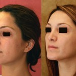 Middle Eastern Rhinoplasty Before & After Patient #6347