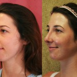 Caucasian Rhinoplasty Before & After Patient #6201