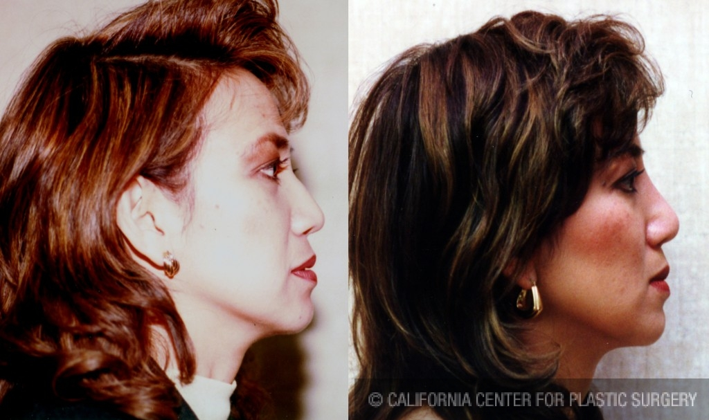 Asian Rhinoplasty Before & After Patient #6385