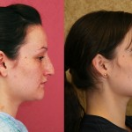 Caucasian Rhinoplasty Before & After Patient #6214
