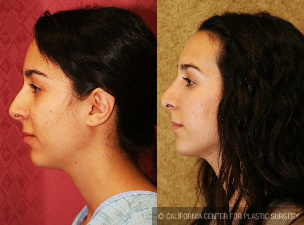 Caucasian Rhinoplasty Before & After Patient #6224