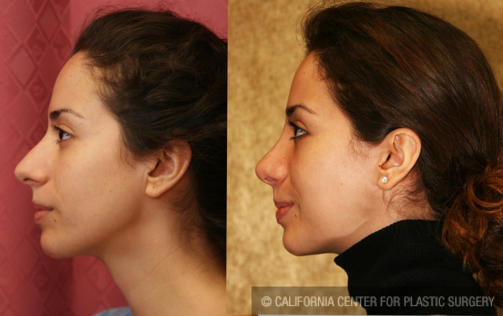 Caucasian Rhinoplasty Before & After Patient #6196
