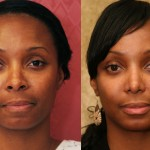 African American Rhinoplasty Before & After Patient #6309