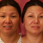 Asian Rhinoplasty Before & After Patient #6375