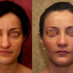 Hispanic Rhinoplasty Before & After Patient #6255