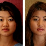 Asian Rhinoplasty Before & After Patient #6394
