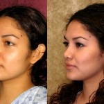 Hispanic Rhinoplasty Before & After Patient #6292