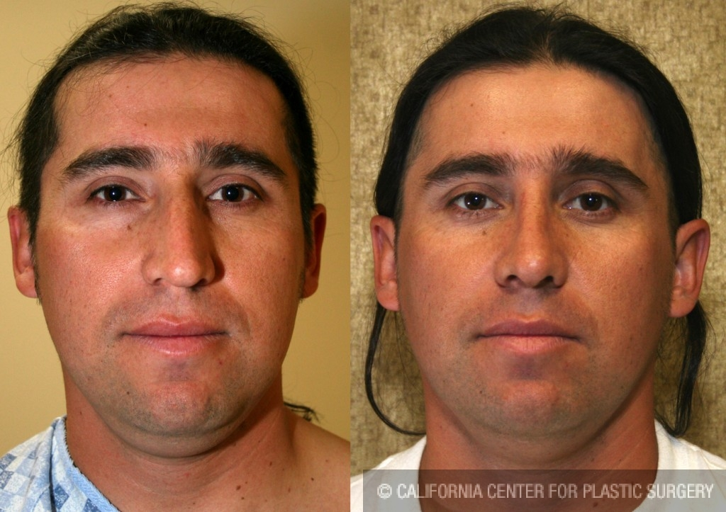 Hispanic Rhinoplasty Before & After Patient #6405