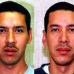 Hispanic Rhinoplasty Before & After Patient #6401