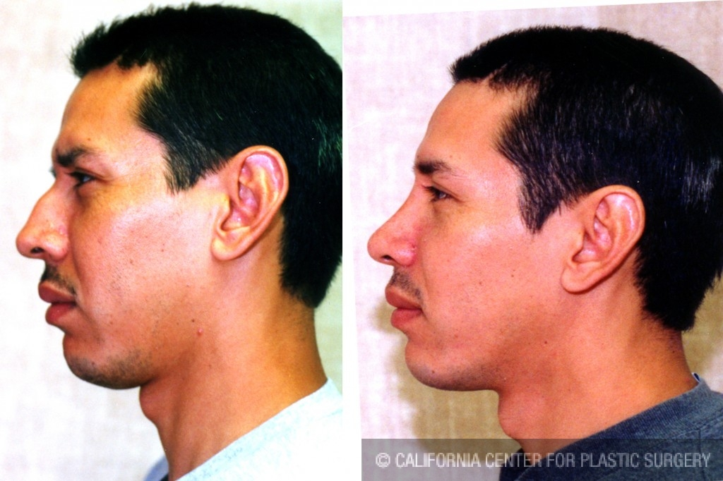 Male Rhinoplasty Before & After Patient #6401
