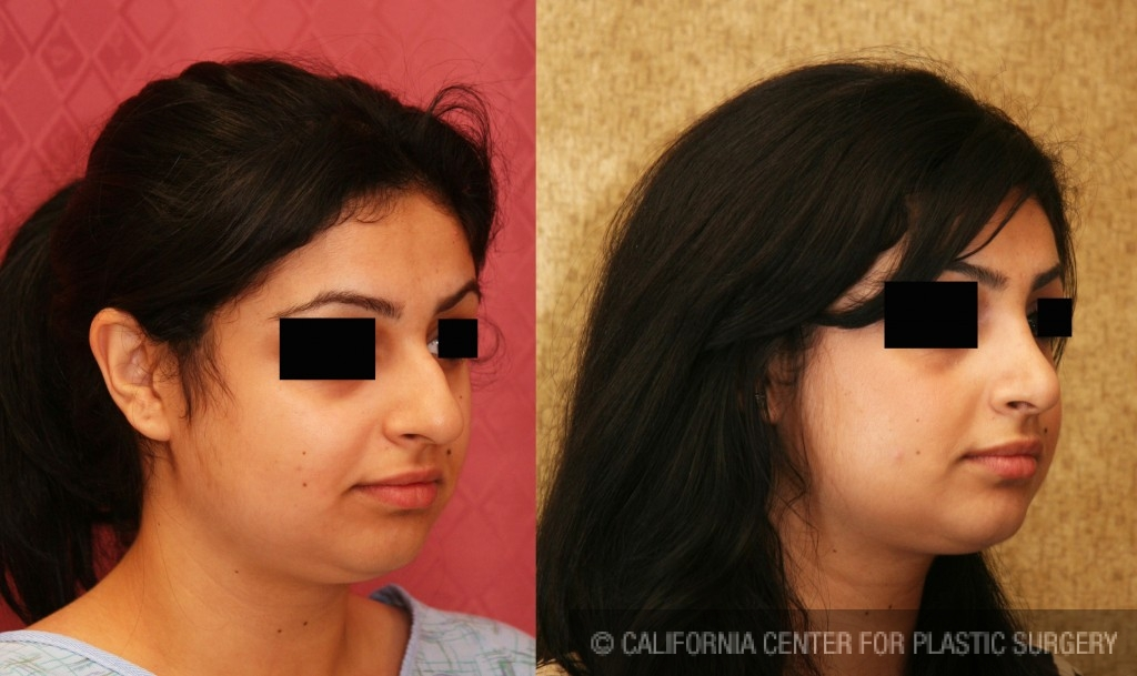 Middle Eastern Rhinoplasty Before & After Patient #6334