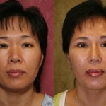 Asian Rhinoplasty Before & After Patient #6368