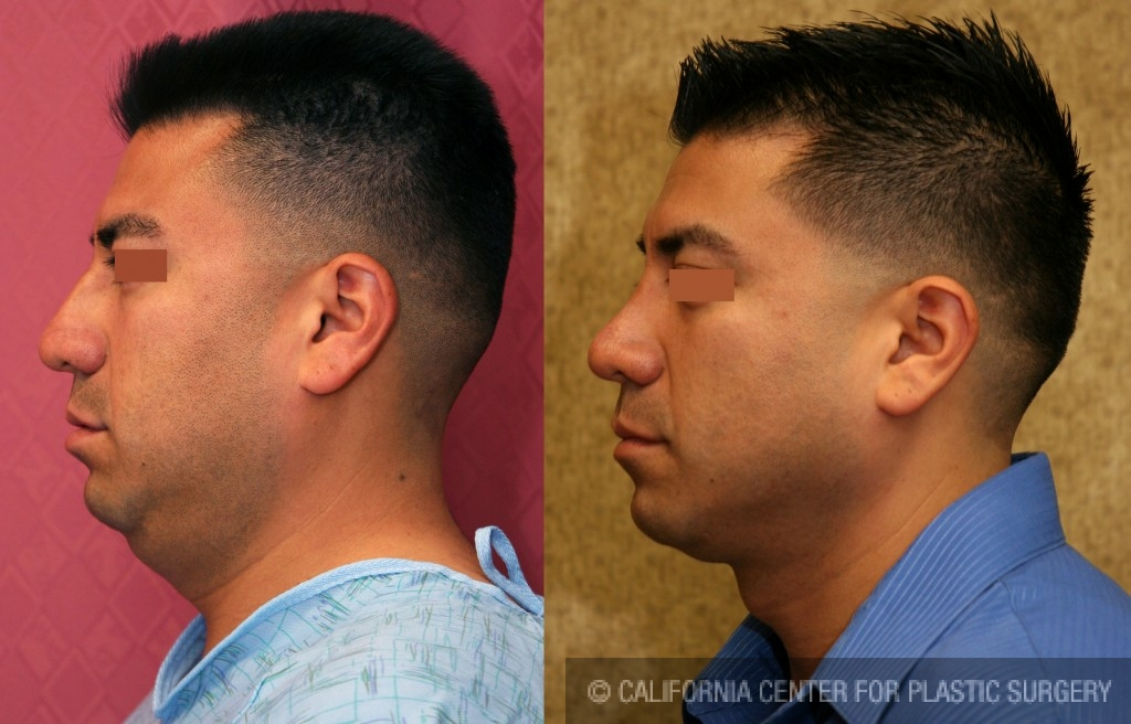 Hispanic Rhinoplasty Before & After Patient #6418