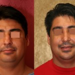 Hispanic Rhinoplasty Before & After Patient #6413