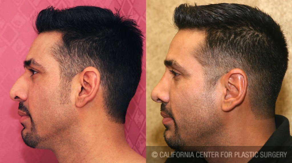 Male Rhinoplasty Before & After Patient #6431