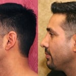 Hispanic Rhinoplasty Before & After Patient #6431