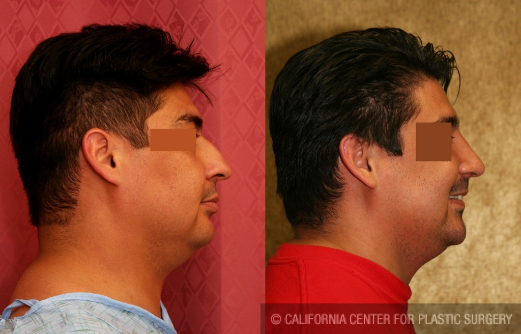 Male Rhinoplasty Before & After Patient #6413