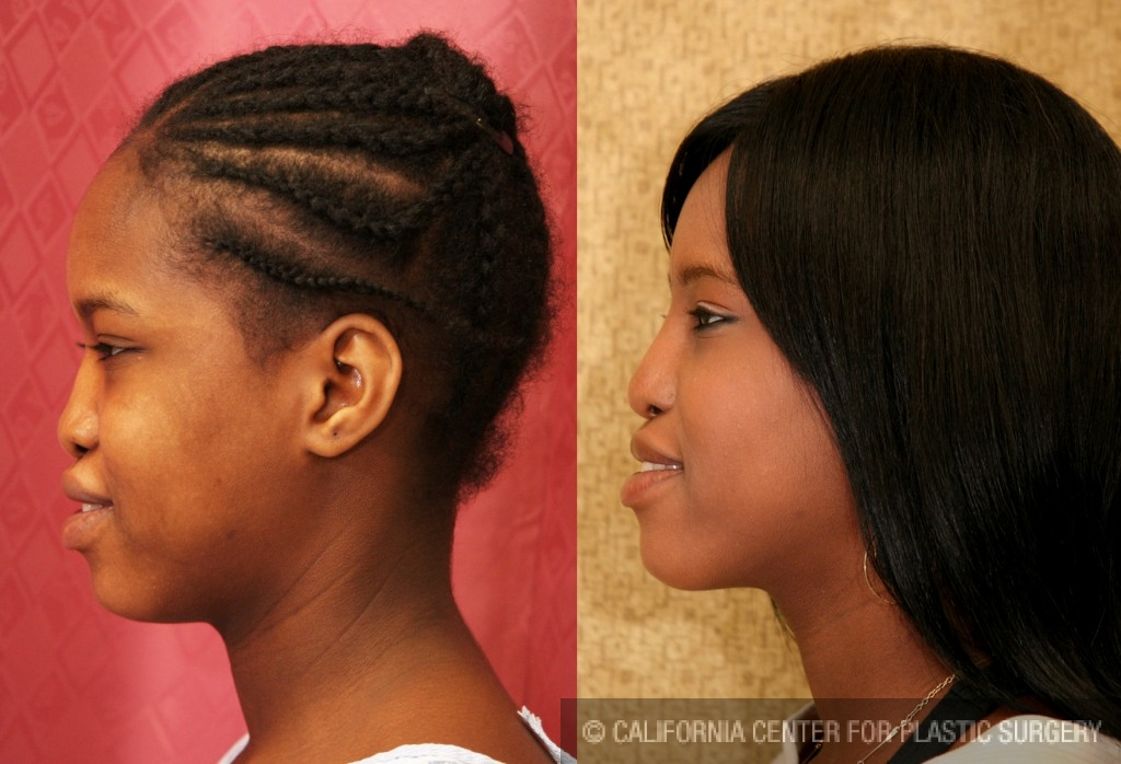 African American Rhinoplasty Before & After Patient #6319