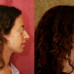 Caucasian Rhinoplasty Before & After Patient #6243