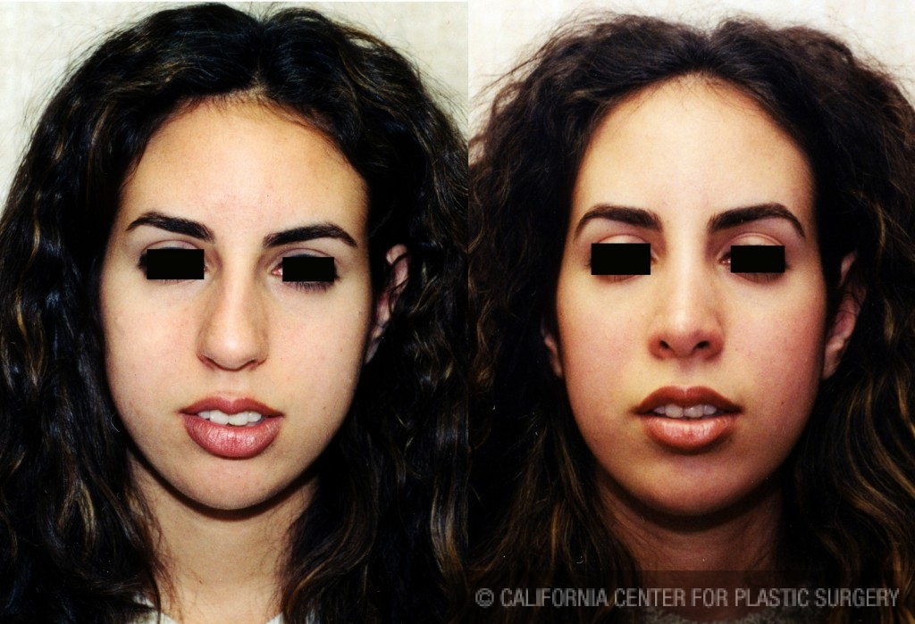 Middle Eastern Rhinoplasty Before & After Patient #6325