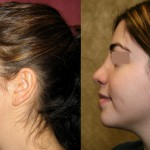 Middle Eastern Rhinoplasty Before & After Patient #6339