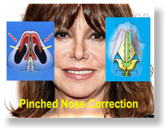 Pinched Nose Rhinoplasty - Revision Rhinoplasty for Pinched Tip ...