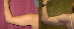 Liposuction Arms Before & After Patient #9464