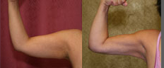 Liposuction Arms Before & After Patient #9479
