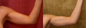 Liposuction Arms Before & After Patient #9484