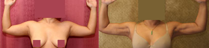 Liposuction Arms Before & After Patient #9489