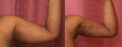 Liposuction Arms Before & After Patient #9492