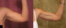 Liposuction Arms Before & After Patient #9471